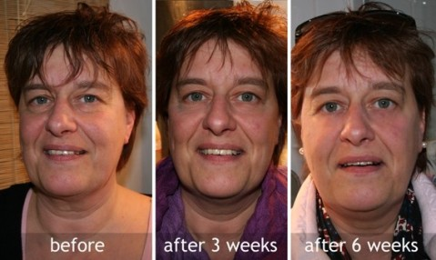 facelift gym before and after
