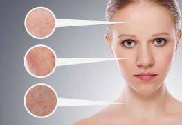Methylisothiazolinone effects to the skin